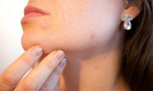 acne0